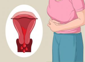 Lạc nội mạc tử cung không thể tự khỏi nếu bạn không điều trị kịp thời