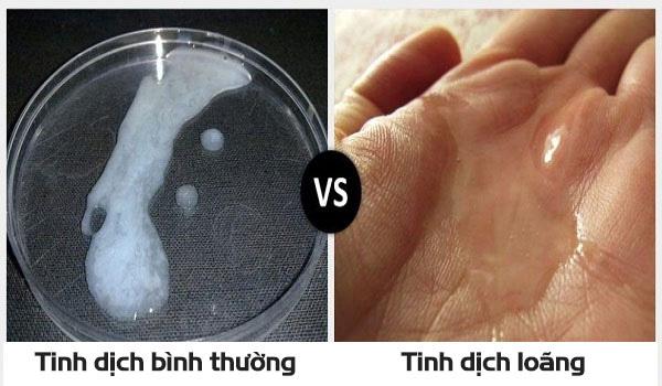 Tinh dịch lỏng, trong suốt là biểu hiện của tình trạng tinh trùng loãng