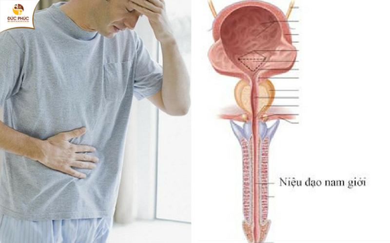 Phát hiện triệu chứng viêm niệu đạo cần đi thăm khám ngay